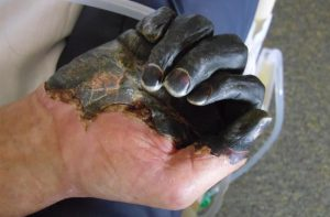 Blackened hands of a man infected with the bacteria Y. pestis.