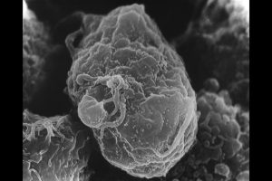 Scanning electron micrograph of HIV virion (smaller structure) on a lymphocyte (large structure.).