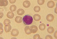A white blood cell (large bluish structure in center) and red blood cells (doughnut-shaped structures).