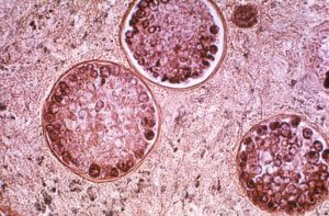 Microscopic view of the pathogenic fungi Coccidioides immitis (large round structures).