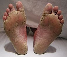 two feet with a scaly-looking fungus infection