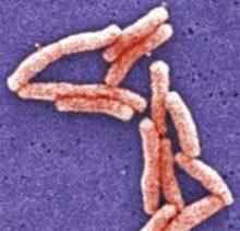 Gram-negative, aerobic rod-shaped (bacillus) bacteria of the Legionella genus