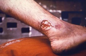 Image of a large circular lesion on an ankle.