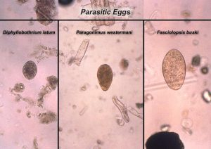 Microscopic views of lung fluke eggs (roundish structure)