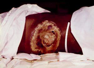 Large ulcerous lesion.